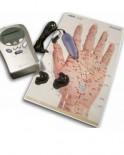 Terapie electroacupunctura