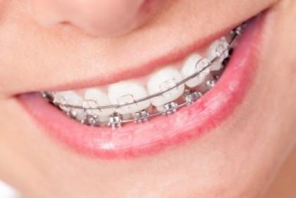 Ortodontia