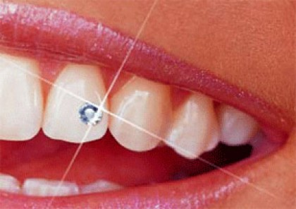 Bijuteriile dentare
