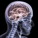 Aparatura medicala radiologie